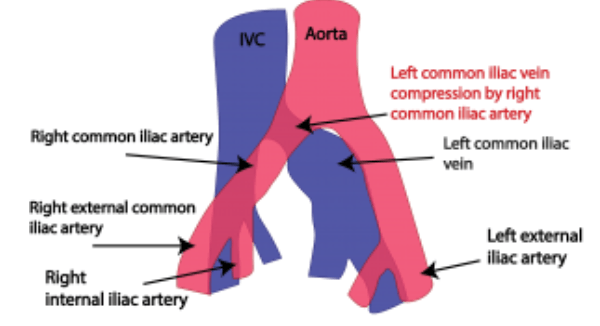 common external iliac artery